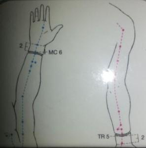 Agopuntura articolazioni
