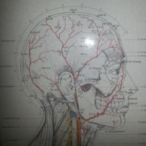 Agopuntura emicrania cefalee